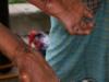 cr-leprosy-clinic-11-640